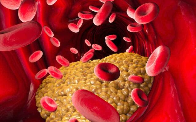 زيادة نسبة الدهون في الدم