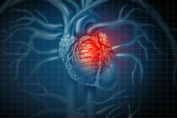 علاج الجلطة القلبية