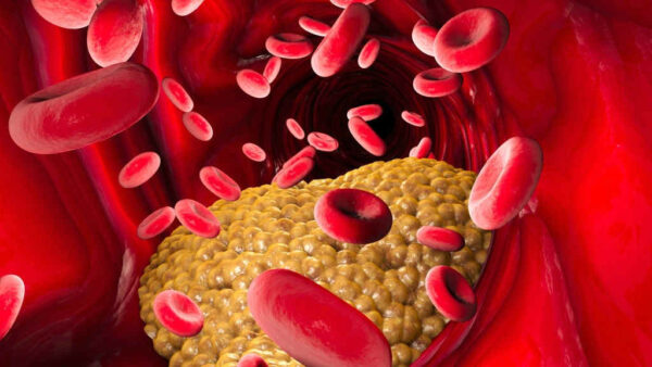 زيادة نسبة الكوليسترول