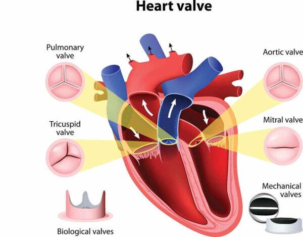 علاج ارتخاء صمام القلب