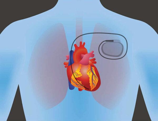 جهاز تنظيم ضربات القلب